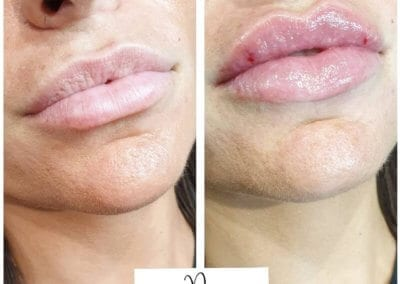 Lip Fillers and Lip Enhancement Dermal Fillers at Glow Saltash Plymouth Pia Cosmetics