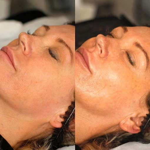 Dermaplaning in Saltash